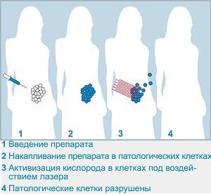 Как лечить дисплазию шейки матки
