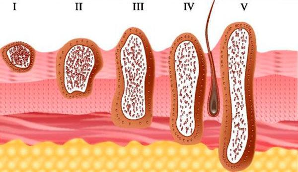 Меланома спины: распространенность, виды, профилактика заболевания