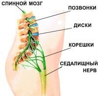Боль в пояснице, причины, лечение