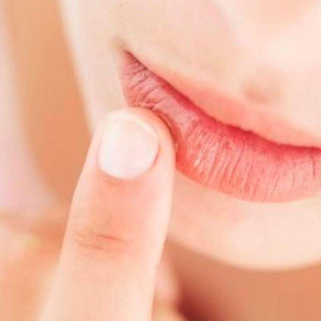 Что делать в случае, если возникла сильная аллергия, первая помощь