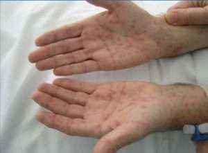 Характерные признаки и способы лечения сифилиса
