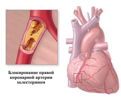 Ишемическая болезнь и стентирование сосудов сердца