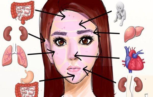 Значение прыщей на лице: взаимосвязь высыпаний и работы внутренних органов