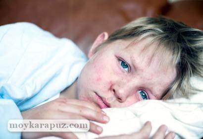 Цитомегаловирусная инфекция у детей и женщин