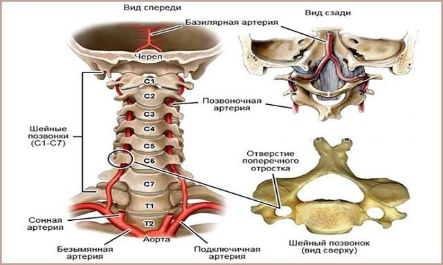 Синдром позвоночной артериии её лечение