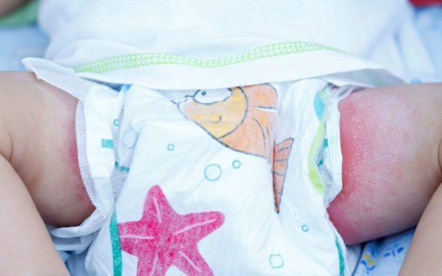 Опрелости у новорожденных: чем лечить?