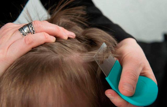 Педикулёз у детей: как и чем лечить