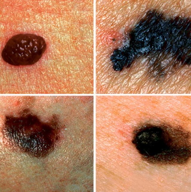 Как избавиться от новообразований на коже