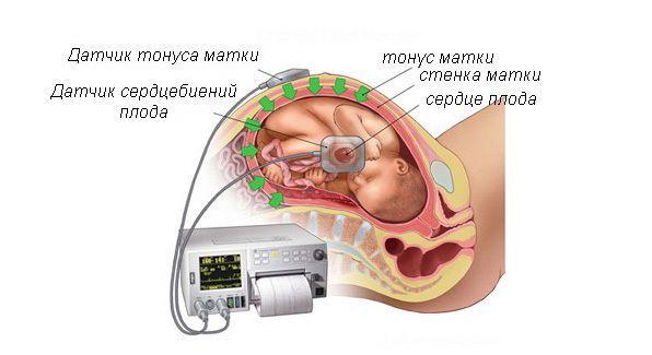 Определение тонуса при беременности, причины гипертонуса матки