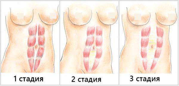 Симптомы и лечение грыжи белой линии живота