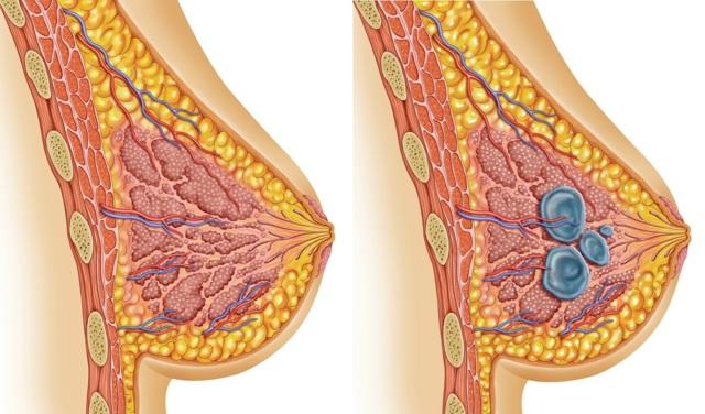 Симптомы и лечение кисты молочной железы