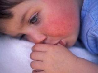 Симптомы и лечение скарлатины у детей