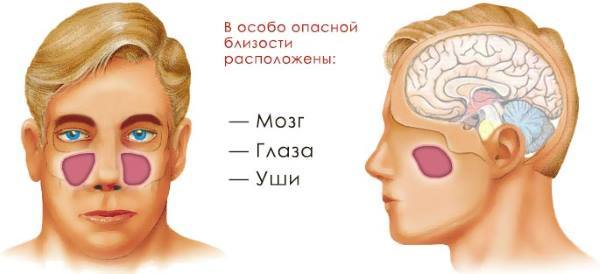 Гайморит: симптомы, лечение в домашних условиях