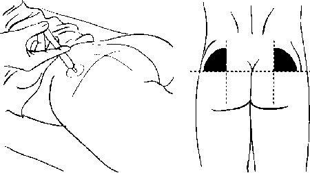 Лечение шишек от уколов на ягодицах