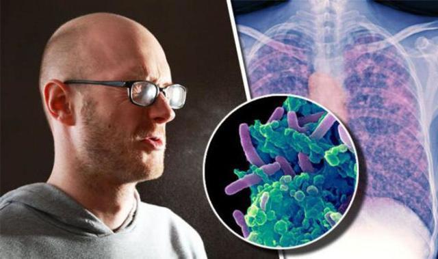 Какой кашель бывает при туберкулезе на различных стадиях заболеваний.