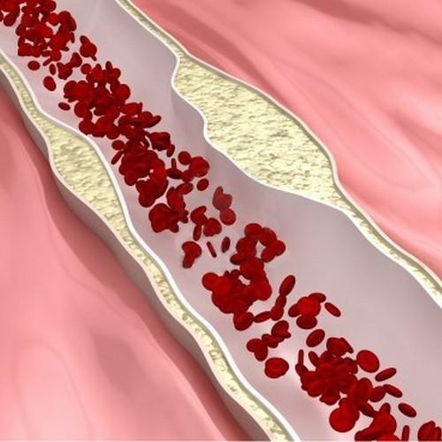 Церебральный атеросклероз: причины, симптомы, диагностика, лечение