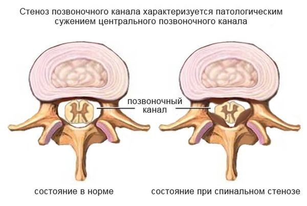 Признаки стеноза позвоночного канала поясничного отдела