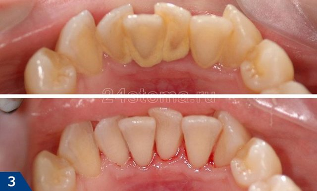 Чистка зубов ультразвуком: отзывы до и после