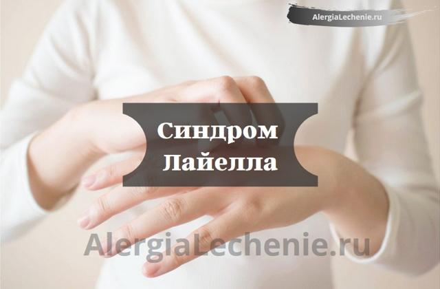 Синдром Лайелла: симптомы, патогенез, причины, методы лечения и профилактика