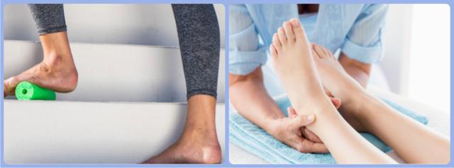 Шпора на пятке: симптомы и эффективные методы лечения