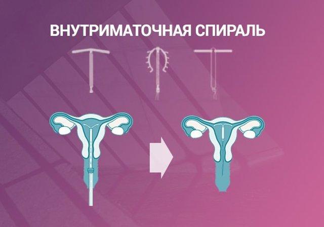 Варианты экстренной контрацепции до и после полового акта