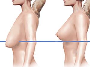 Способы увеличения груди:как обойтись без имплантов