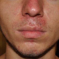Прыщи на носу: причины появления, лечение и профилактика