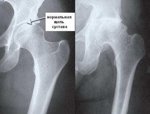 Ревматизм суставов: симптомы и лечение