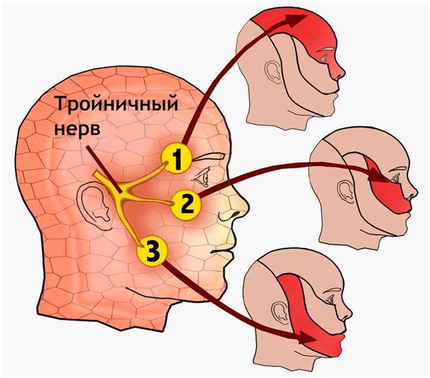 Воспаление тройничного нерва: симптомы и лечение