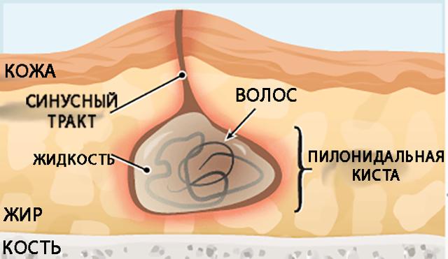 Симптомы и лечение кисты копчика