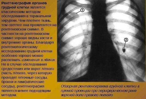 Флюорография и рентген легких: в чем разница
