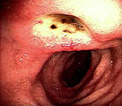 Язва двенадцатиперстной кишки и ее возможные симптомы