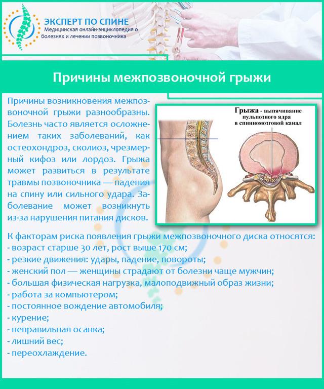 Отзывы о применении препарата карипазим при грыже позвоночника