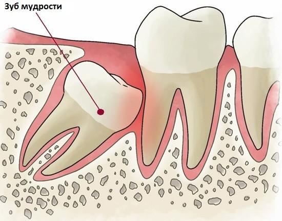 Удаление зуба мудрости: как облегчить последствия