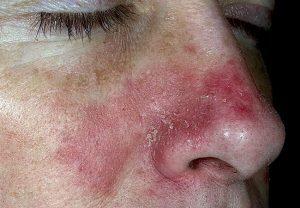 Себорейный дерматит: симптомы, причины возникновения, методы лечения