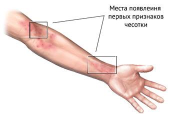 Чесотка: симптомы, фото и первые признаки