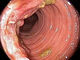Рак прямой кишки: первые симптомы и лечение