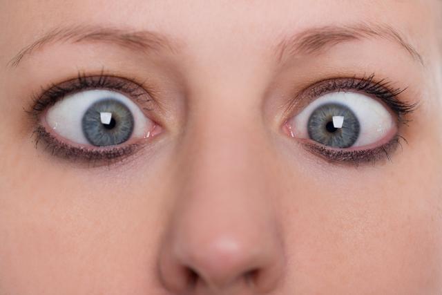 Синдром Марфана: что это такое?