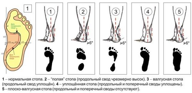 Лечение продольного плоскостопия у детей и взрослых