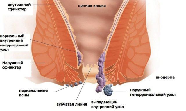 Причины и способы лечения зуда в заднем проходе