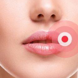 Прыщ на губе: как избавиться, причины появления