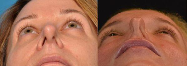 Искривление носовой перегородки: симптомы и лечение, операция