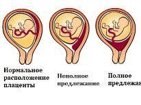 В каких случаях делают кесарево сечение