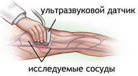 Онемение конечностей, причины и лечение