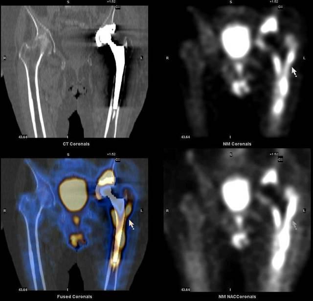 Какие заболевания выявляет сцинтиграфия костей скелета