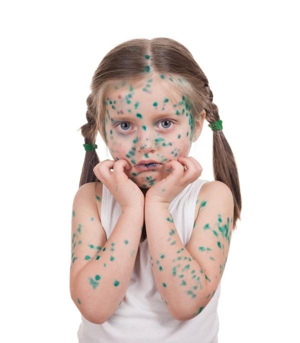 Как быстро отмыть зеленку после ветрянки у ребенка с кожи