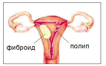 Полипы в матке: симптомы, лечение