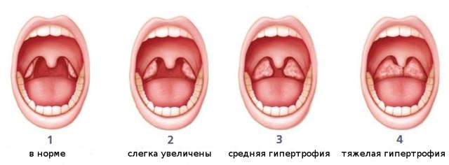 Аденоиды 1, 2 и 3 степени у детей