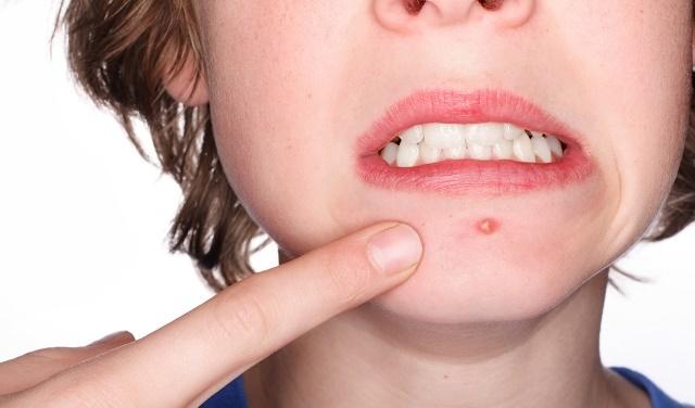 Опоясывающий лишай у человека: как распознать симптомы, какое лечение, фото