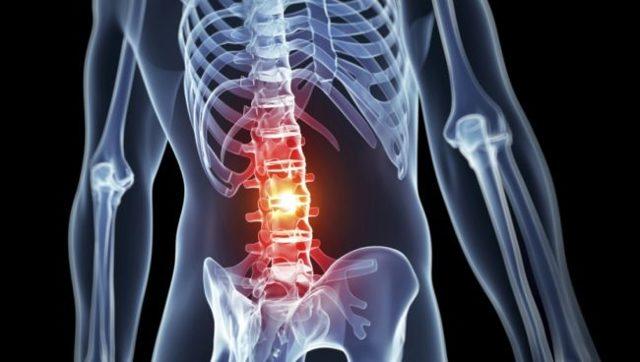 Ущемление нерва в поясничном отделе позвоночника: лечение и профилактика